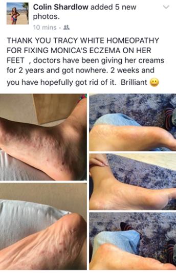 July 2017 A case of chronic Pompholyx / Dyshidrotic eczema improving after only 2 weeks on a remedy.